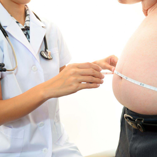 General surgery Obesity and Bariatric Surgery
